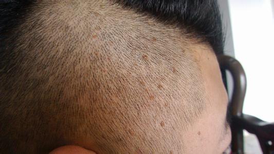 头皮毛囊炎怎么治疗?用什么药