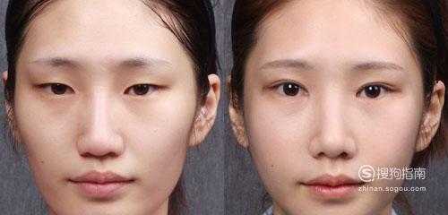 怎样贴双眼皮贴,正确贴双眼皮贴的方法