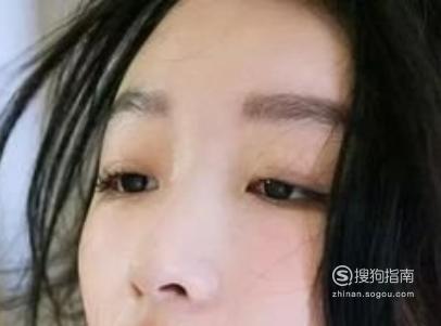 双眼皮变肿的原因有哪些?该怎样改善?