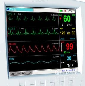 怎么看心电监护仪上的数值呢?