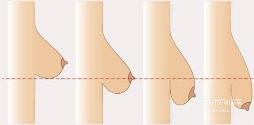胸部下垂矫正三种方法及优缺点