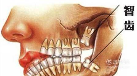 拔掉智齿\阻生牙的流程步骤