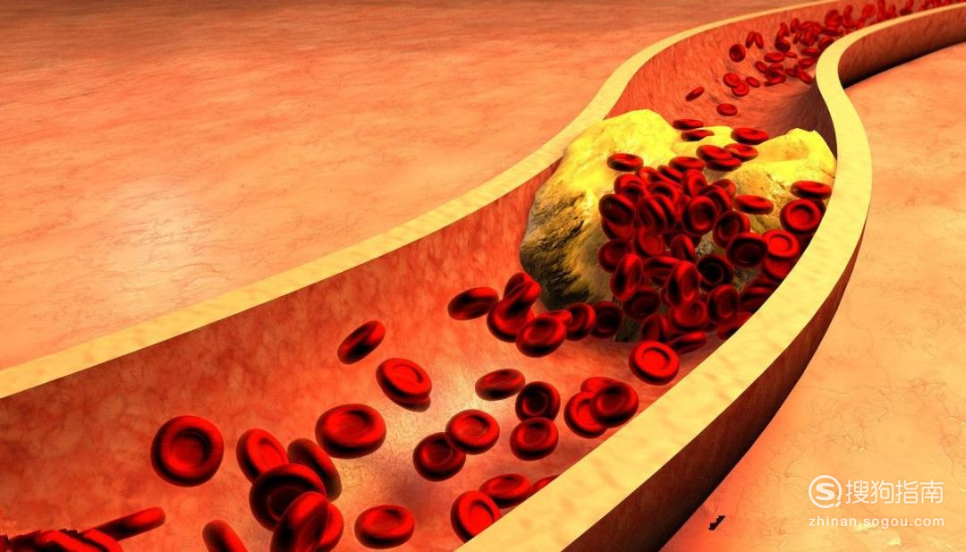 血脂高应注意什么